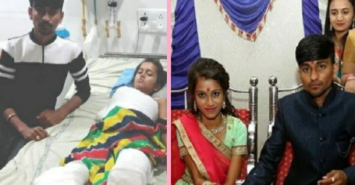 the-groom-agree-to-marry-the-girl-whose-body-was-burnt